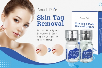 [DONT PUBLISH] Amada Pure Mole Corrector & Skin Tag Remover Will Make Your Skin Flawless! Why Removing Moles Is a Must?