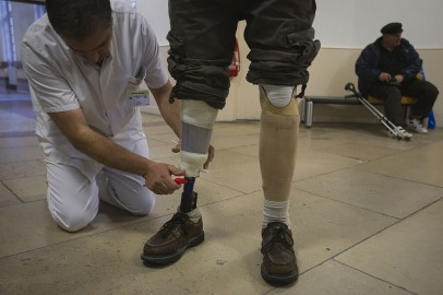 Amputee Boxer Wearing a Prosthetic Leg to Set Foot on Ring for First Professional Fight